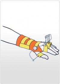 Orteza de incheietura a mainii