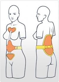 Tratamentul medicamentos pentru deformarea artrozei articula?iei ?oldului
