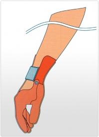 Proteza partiala de mana functionala