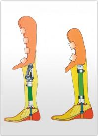 Ortoproteza modulara