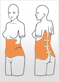 Orteza toracolombosacrala corset Boston