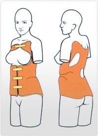 Orteza toracolombosacrala corset Cheneau