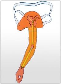 Proteza amputatie inter-scapulo-toracica functionala actionata pasiv