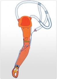 Proteza de brat functionala actionata prin cablu