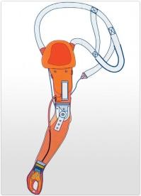 Proteza de brat functionala mioelectrica cu articulatie de cot mecanica, cu blocare