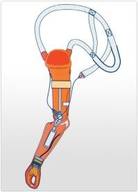 Proteza de dezarticulatie de cot functionala, mioelectrica