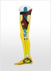 Proteza de coapsa modulara cu manson thermolyn suprasoft