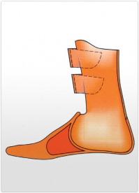 Proteza partiala picior Lisefranc