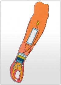 Proteza de antebrat functionala mioelectrica