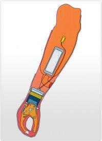 Proteza de antebrat functionala actionata mioelectric