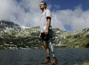 Ce trebuie sa stii despre proteza ta