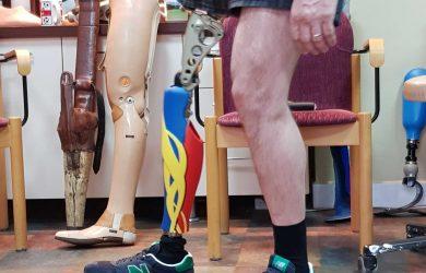 prima proteza de picior